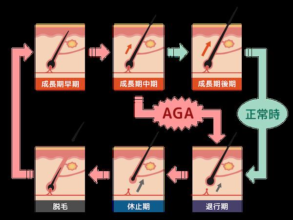 AGA薄毛の髪のサイクルのイメージ像