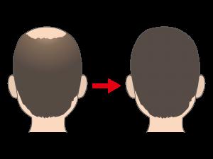 ザガーロの治療のイメージ像