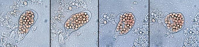 赤痢アメーバの顕微鏡像
